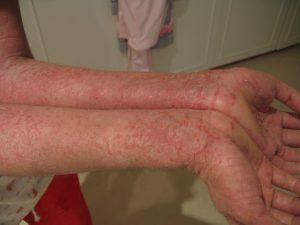 atopowe zapalenie skóry na rękach