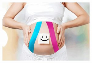 taping w ciąży